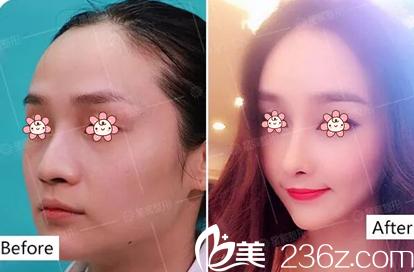 重庆星宸整形美容医院公开2018年7月16日彭绍宗院长硅胶隆鼻手术案例。