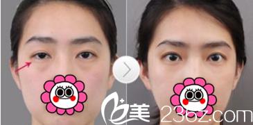 从北京华韩柳民熙李鹏超双眼皮整形修复案例价格来看双眼皮效果好不好