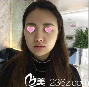 北京丽都医疗美容医院梁春霞术前照片1