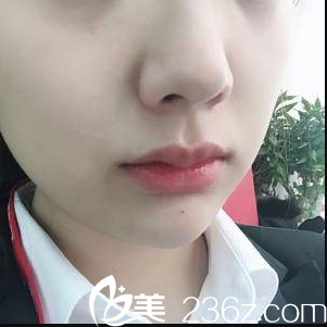 闺蜜说我在北京丽都找梁春霞注射丰唇嘟嘟唇效果她挺喜欢
