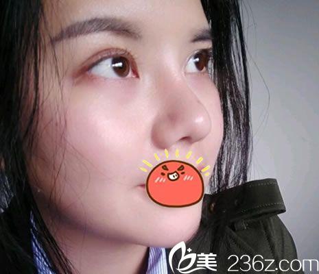 看了我找金华心艺整形赵俊做鼻综合隆鼻和双眼皮手术过程和效果,相信你就敢做眼睛鼻子啦