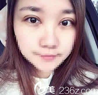自从找太原美林苑大夫张繁萍做了韩式三点7MM双眼皮+开眼角手术20天后,开始了我的女神之路