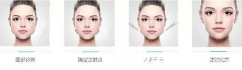 注射瘦脸针理想中的效果