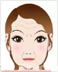 脸大的原因之四下垂型脸大