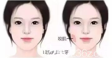 肌肉型脸大红色标注的是脸部咬肌