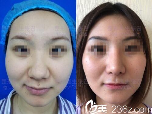 鼻头肥大矫正前后对比