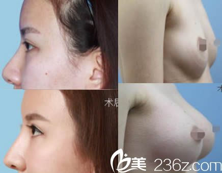 东莞缔美整形赵可医师假体隆鼻及假体隆胸案例图
