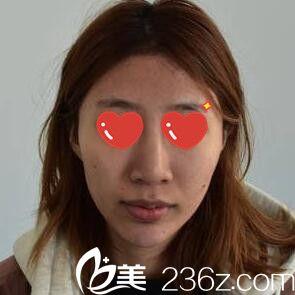长沙禾丽医疗美容医院李超术前照片1