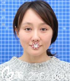 重庆时光整形美容医院范眉清术前照片1