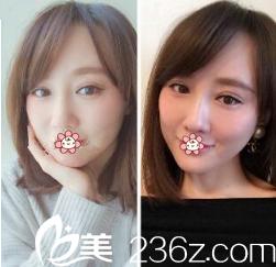 想想当时花了16480在重庆时光做的面部埋线提升,单这效果来说都值了!