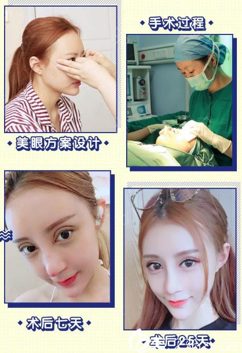 广州韩妃王媛做的双眼皮开眼角案例