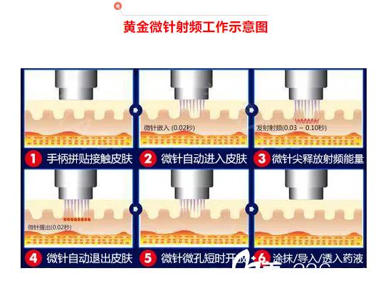 黄金微针射频工作原理示意图