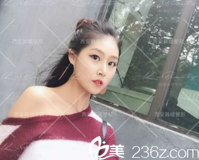 西安韩媚医疗美容医院杨岳新术后照片1