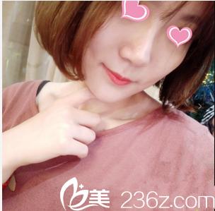 北京世熙硅胶假体鼻综合隆鼻案例