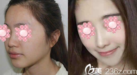 自体肋软骨隆鼻前后效果对比图