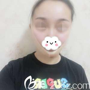 面部吸脂术后第一天