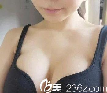 九江协和医疗美容医院吴伟林术后照片1