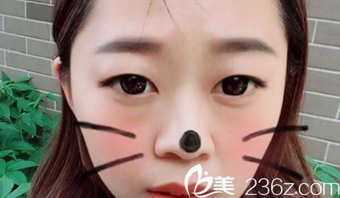 湖州曙光医疗美容门诊部蔡茂季术前照片1