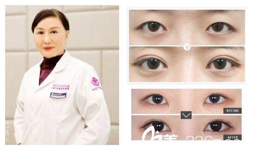 张立平专家双眼皮案例