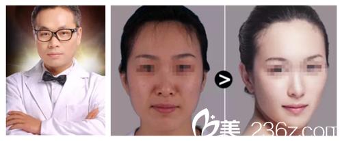 维多利亚徐舰专家注射瘦脸案例