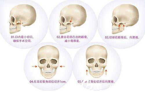 磨颧骨手术原理