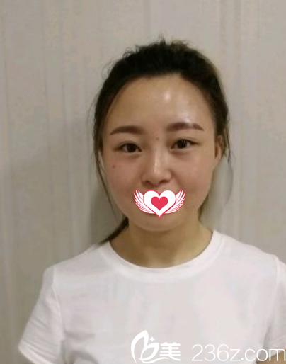 石家庄越然医疗美容门诊部魏宁术前照片1