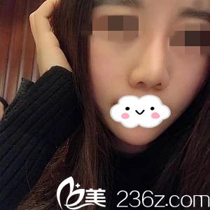 我在湘潭雅美医疗美容医院做的嫩肤术后20天后的效果