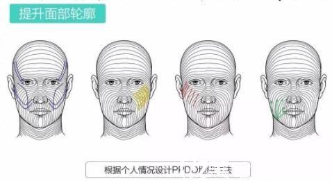 面部线雕原理