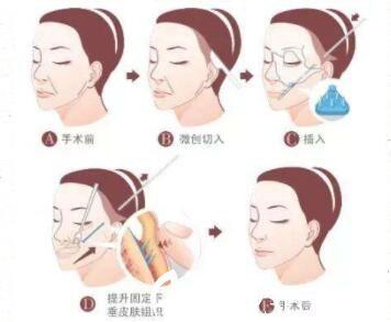 面部线雕手术方法