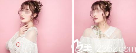 预约桂林美丽焦点杨天然给我做了激光美肤之后 告别了痘痘痘印和色斑