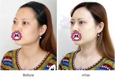 沈阳百嘉丽整形医院用真人案例告诉你玻尿酸隆鼻效果好吗?