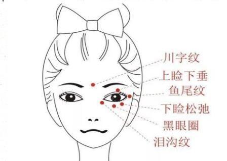 面部有那些皱纹问题