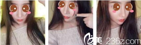 我就是冲着牛永敢隆鼻的好口碑,才去上海薇琳做了鼻修复