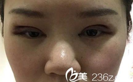 刚刚割完双眼皮之后的样子_刚经历了割双眼皮手术,把双眼皮手术后快速消肿6大要点分享给 ...