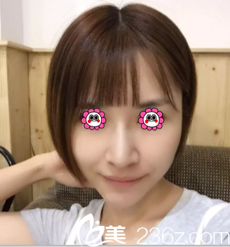 要问北京美莱和艺星哪个好些参考我找赵峻贤做线雕面部提升效果