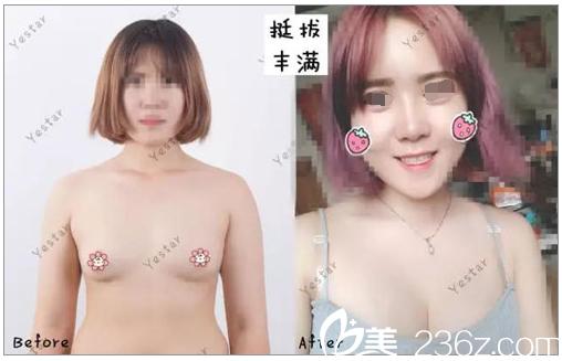 看完我在南京艺星做的自体脂肪隆胸蜕变 闺蜜也去面诊蒋晟院长做了假体隆胸
