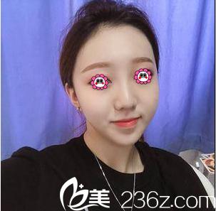 我在北京当代做面部吸脂效果和价格告诉你面部吸脂多久消肿