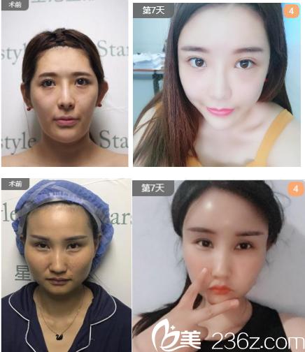 济南星范医疗美容诊所线雕案例分享