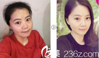 历下宝琳娜医疗美容诊所埋线提升案例分享