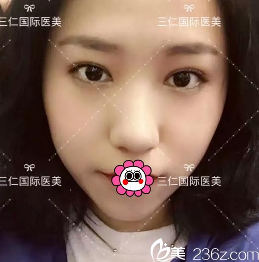 公开我在北京三仁国际整形做4D美人眼开内眼角价格和效果