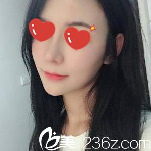 看我找长沙鹏爱整形医院刘春明做的综合假体隆鼻术后1个月效果怎么样