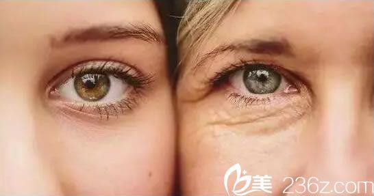 做完双眼皮的效果图