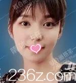 冲北京联合丽格好口碑我做弦性面部提升后改善了苹果肌下颌缘下垂问题