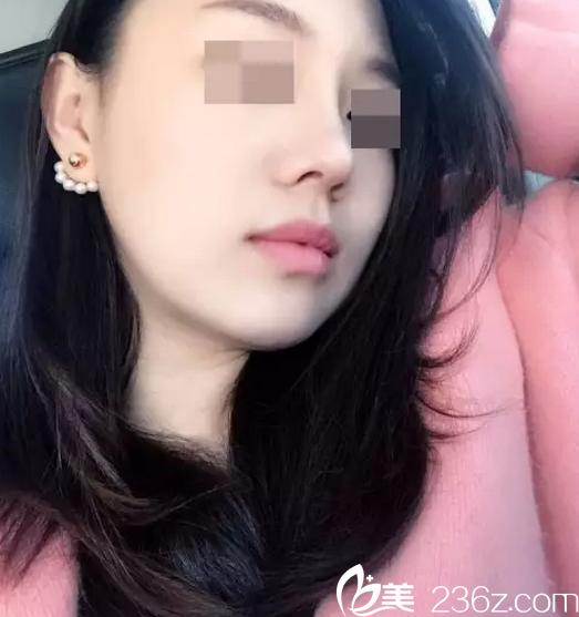 看李劲良做鼻子类型风格挺好我在北京柏丽做鼻子价格六万余钱