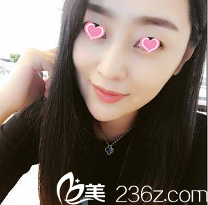 我花六万余在北京叶美人体验面部吸脂才知道姚明龙抽吸脂技术真不错