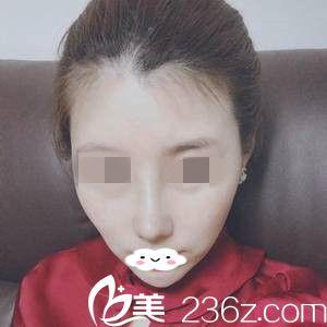 看了黑龙江瑞丽整形医院的价格表和案例之后找李云峰主任做了鼻综合手术