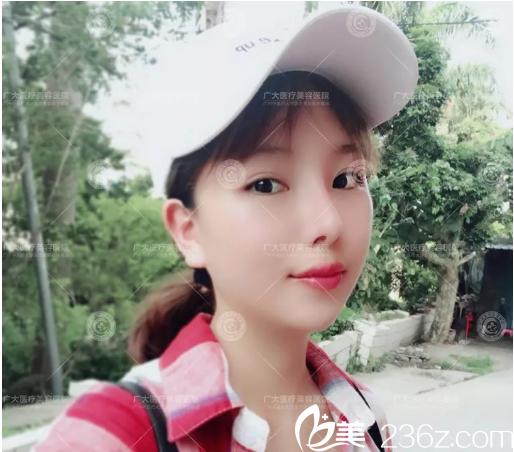 听说广州广大医院徐威强磨骨改脸型技术特别好于是我慕名来做了下颌角整形