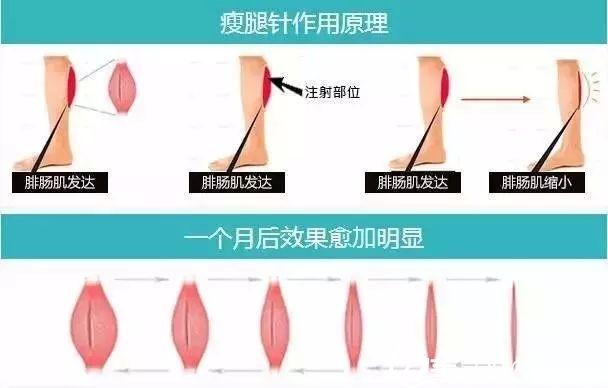 看完激光溶脂和瘦腿针的工作原理,是不是觉得两种方法效果都还不错