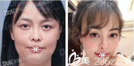 重庆铜雀台整形美容医院分享小霞,玲玲等四位妹子的面部线雕案例效果图。