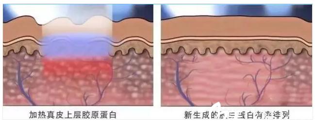 点阵激光治疗妊娠纹原理